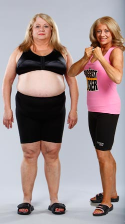 The Biggest Loser Contestant Sherry Johnston on CPAP Therapy